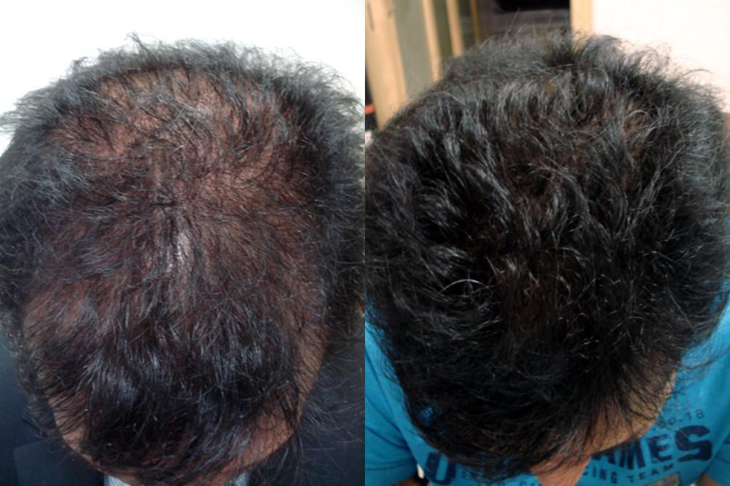 درمان ریزش مو با مزوتزاپی