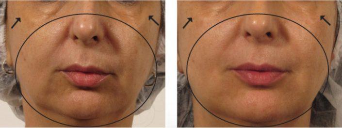 شفاف سازی - بازسازی - بهبود خط لبخند