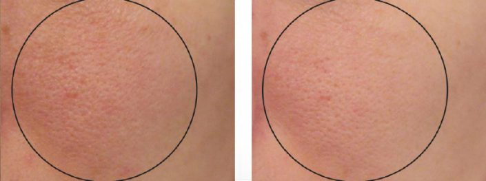 کاهش منافذ پوست