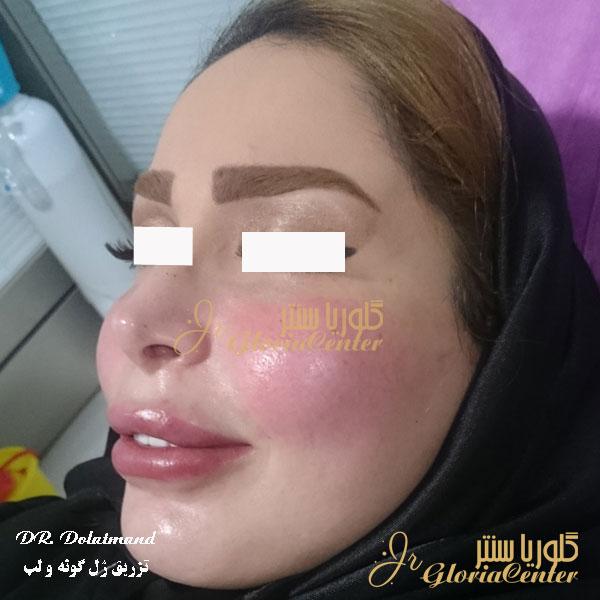 از بین بردن ورم صورت بعد از تزریق ژل