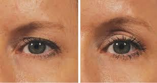درمان افتادگی پلک یا پتوز