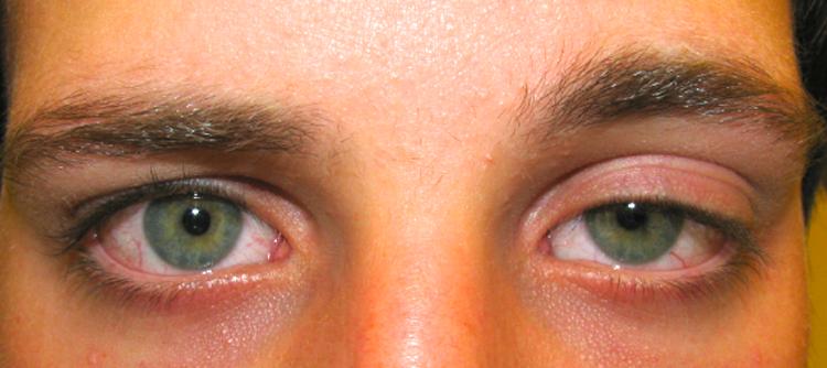درمان افتادگی پلک یا پتوز ناشی از تزریق بوتاکس