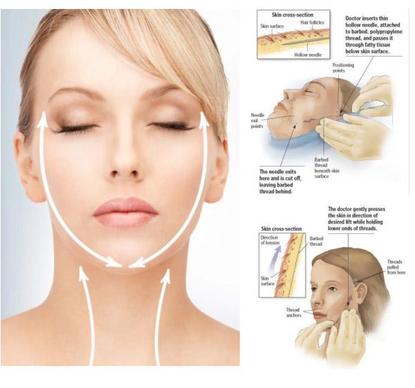 مراقبت های بعد از لیفت صورت با نخ
