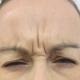 عوارض بوتاکس بر چشم و بینایی