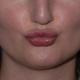 بوسیدن بعد از تزریق ژل لب