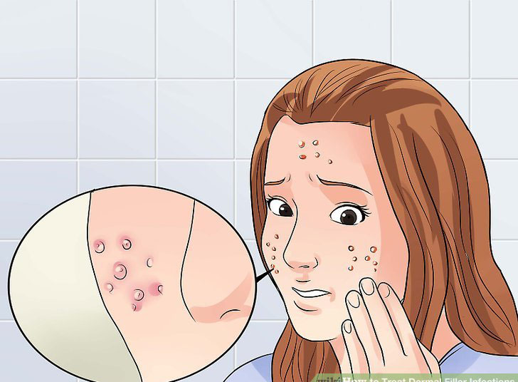 علائم عفونت تزریق ژل