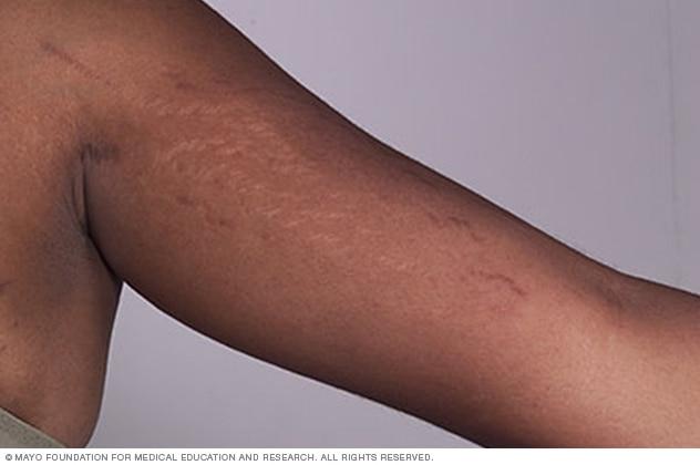 درمان ترک های قرمز پوستی