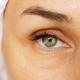 مزایای تزریق ژل زیر چشم