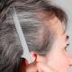 علت سفید شدن مو