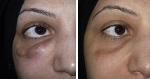 مراقبت های بعد از تزریق ژل زیر چشم