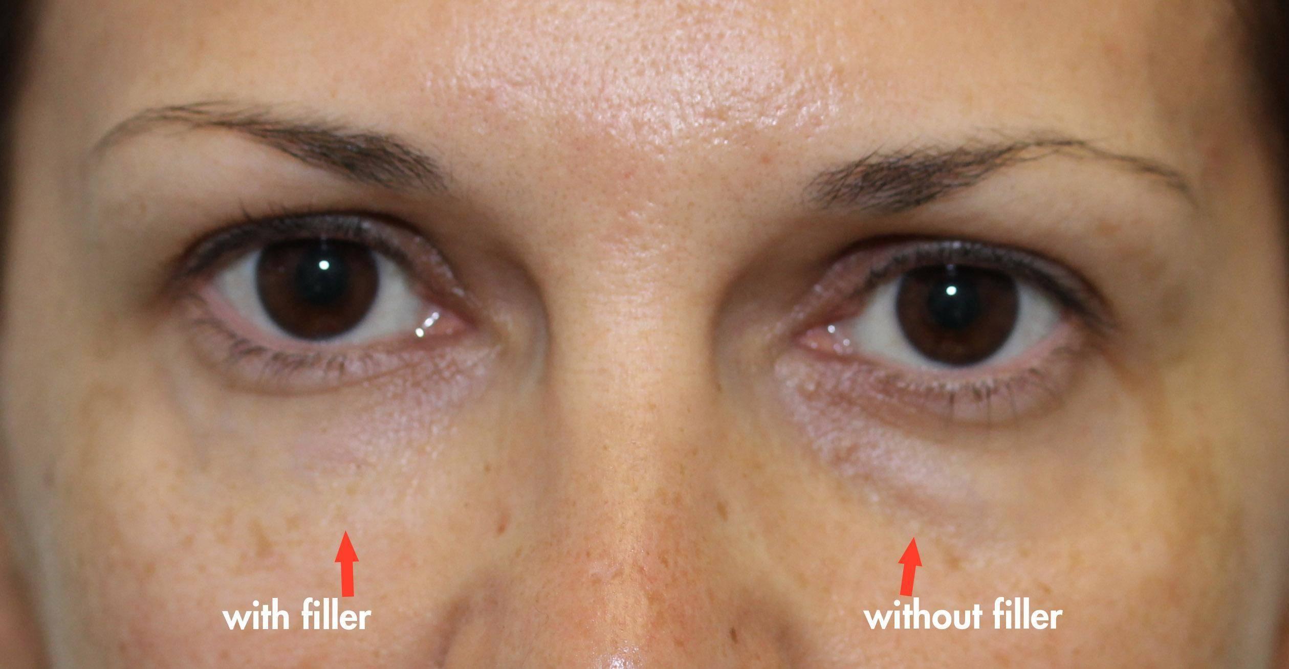 تزریق ژل زیر چشم با کانولا