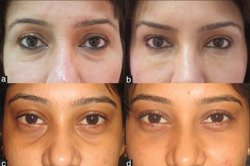 تزریق چربی به گودی زیر چشم
