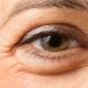 چه عواملی باعث پف زیر چشم میشود