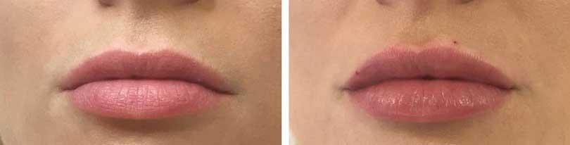 درد پس از تزریق ژل لب