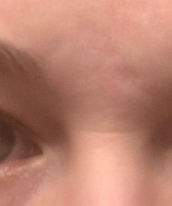 بوتاکس چروک افقی بین چشم ها