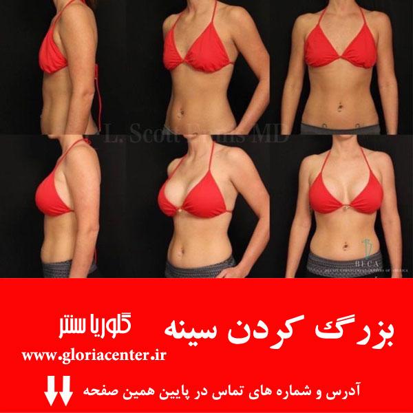 بزرگ کردن سینه