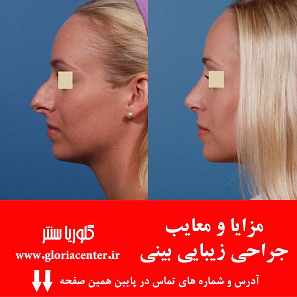 مزایا و معایب جراحی زیبایی بینی (رینوپلاستی)