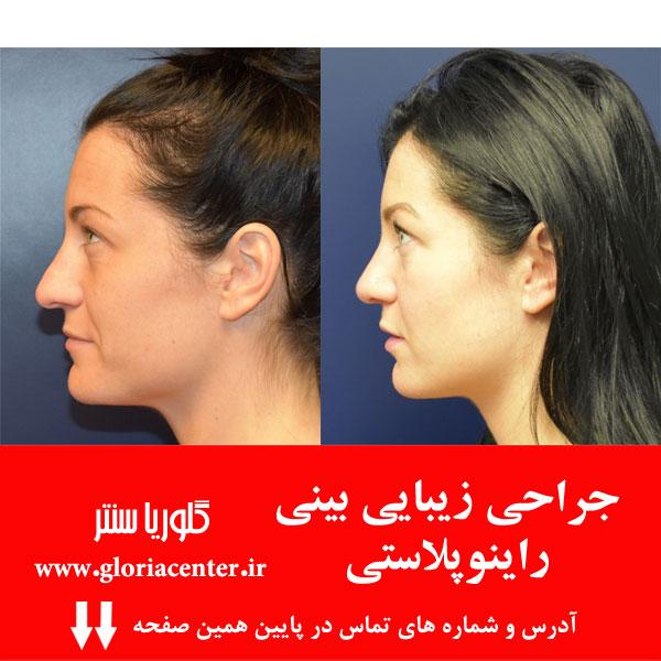 جراحی زیبایی بینی یا رینوپلاستی