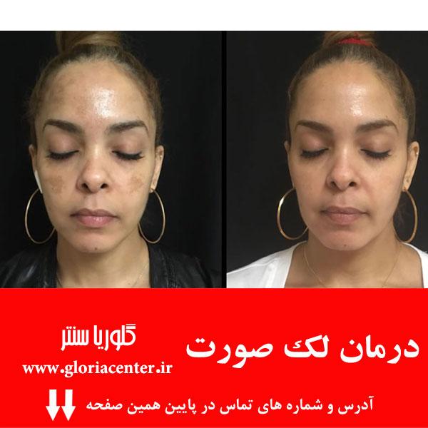 درمان ملاسما یا لک صورت