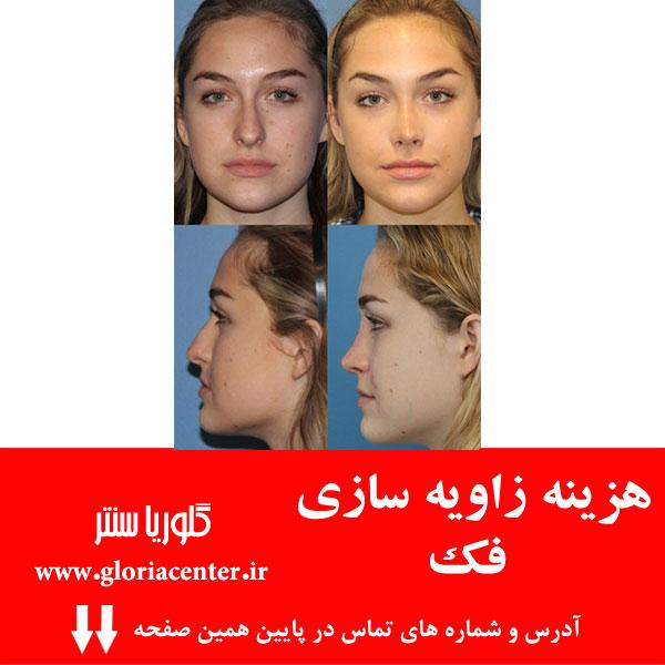 خطرات و عوارض جراحی زیبایی بینی