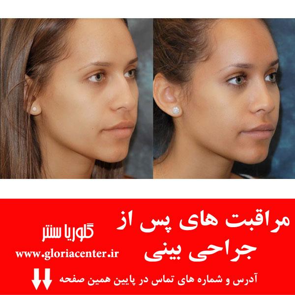 بایدها و نبایدها پس از جراحی زیبایی بینی