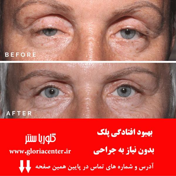 بهبود افتادگی پلک بدون نیاز به جراحی
